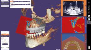 produit EXOCAD EXOCAD Dental CAD